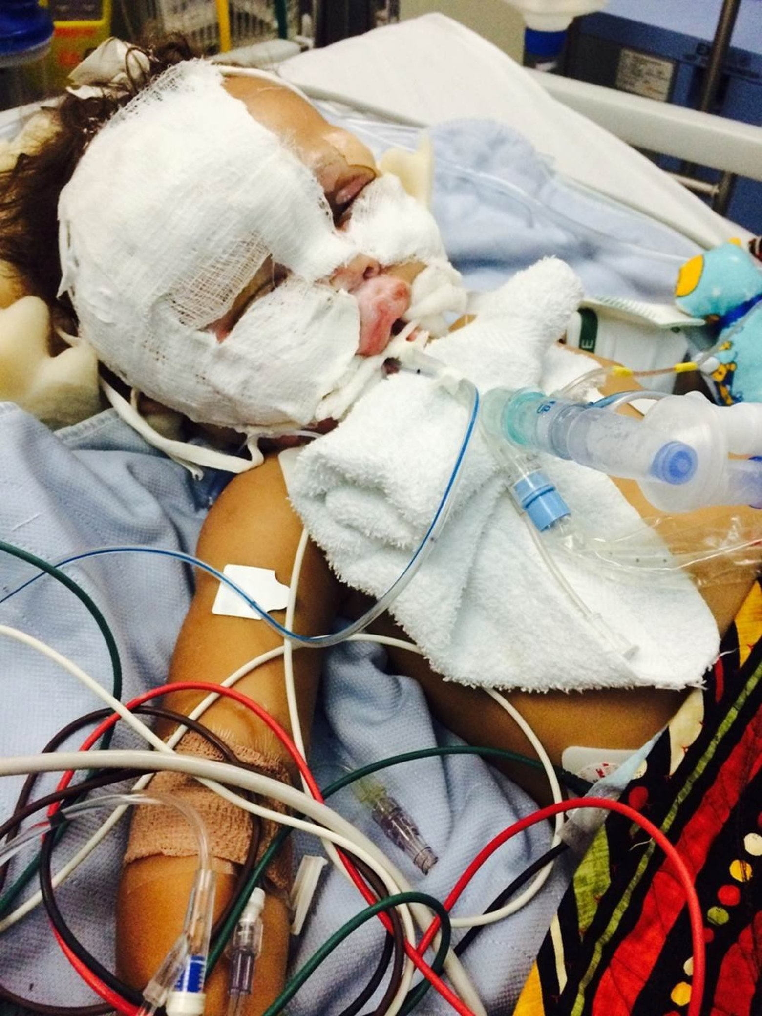 Madigan Army Medical Center Won't Appeal $12.3M Verdict for Surgery That Burned Child